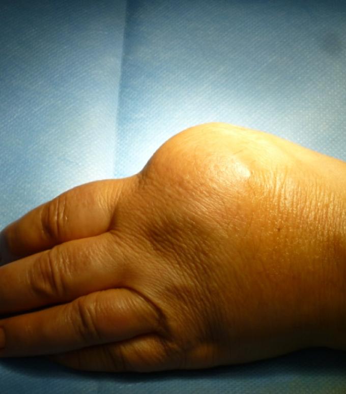 (3) Aspetto clinico preoperatorio
