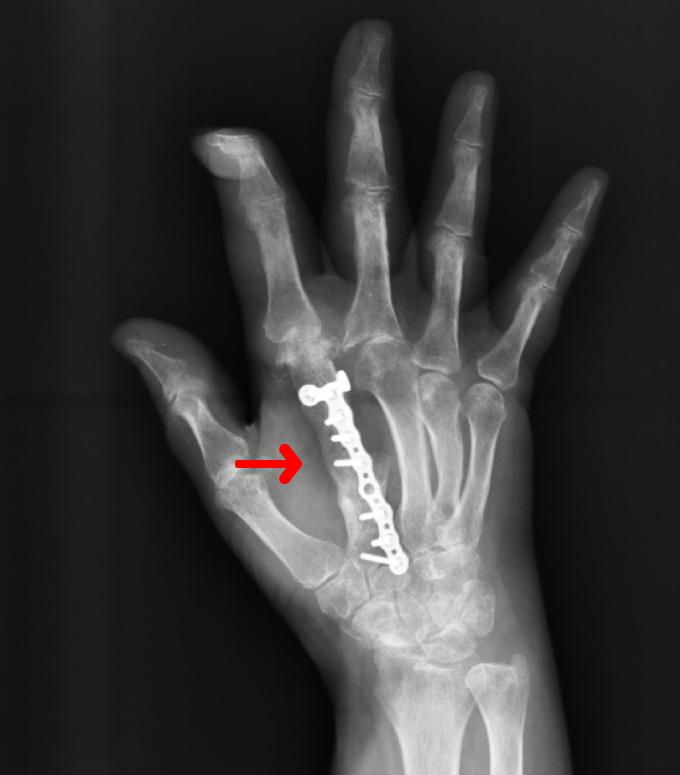 (2) Rx dopo tre mesi dall'intervento. Si noti la perfetta osteointegrazione dell'innesto osseo con il restante metacarpo