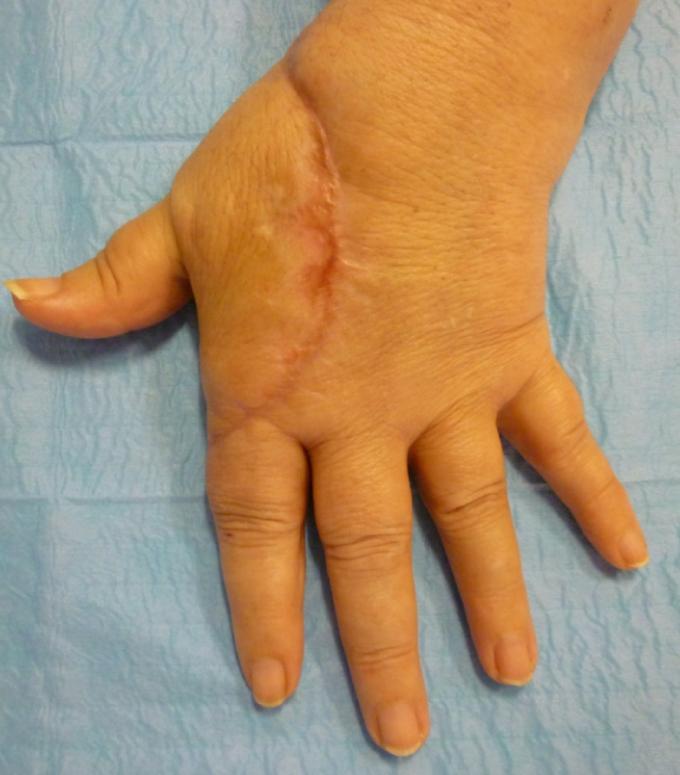 """(3) Controllo clinico a tre mesi. In evidenza l'ampia cicatrice necessaria per """"aggredire la voluminosa massa tumorale"""""""