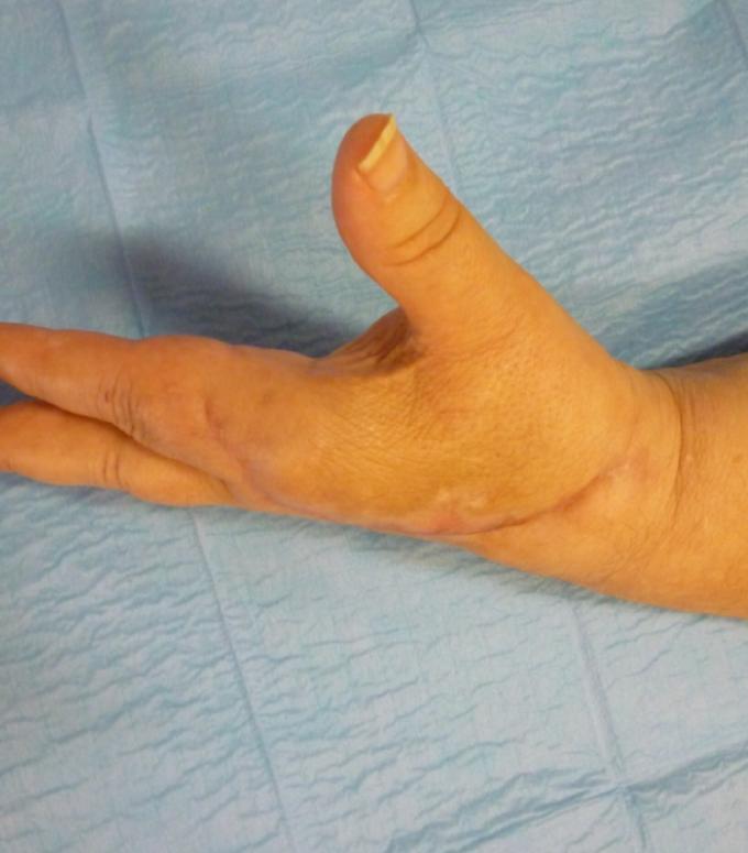(4) Controllo clinico a tre mesi. Si noti il recupero fisiologico dell'estensione attiva e passiva del II dito